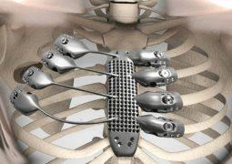 3D baskılı göğüs kafesi implante edildi!