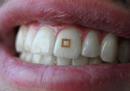 Diş sensörü