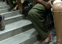 Yapay zekalı protezler